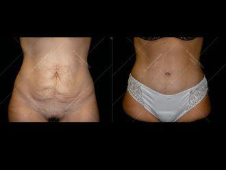 Abdominoplastie - 611632