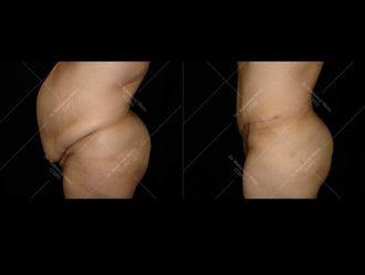 Abdominoplastie - 611634