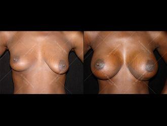 Augmentation mammaire - 611636