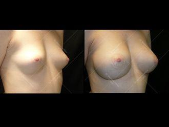 Augmentation mammaire - 611638