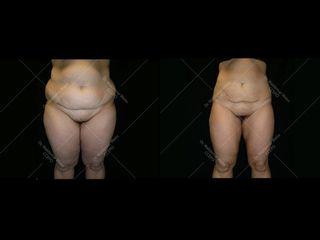 lipoaspiration-abdomen-d-avant-apres