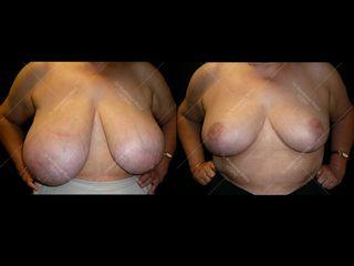 reduction-mammaire-b-avant-apres
