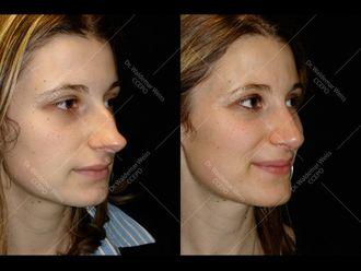 Chirurgie Esthétique-611665