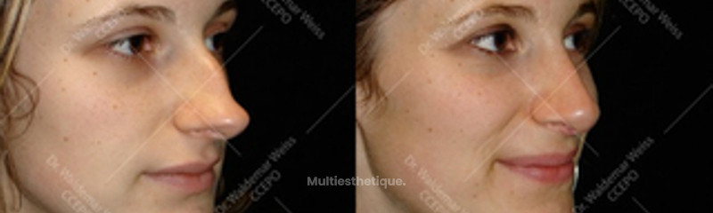 rhinoplastie-pointe-b-avant-apres