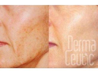 Dermatologie-584000