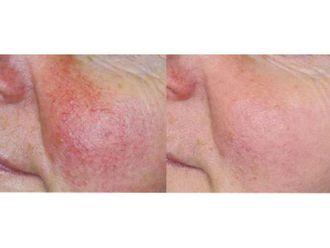 Dermatologie-584007