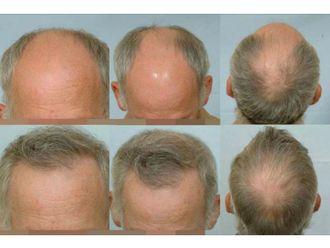 Implants capillaires - 584017