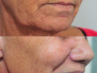 Augmentation des lèvres-792756