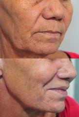 Lifting lèvre supérieure - Dr Roland Kolbe & Dr Anne Kolbe