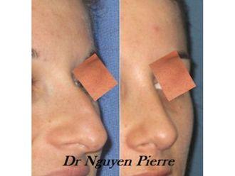 Chirurgie Esthétique-545071