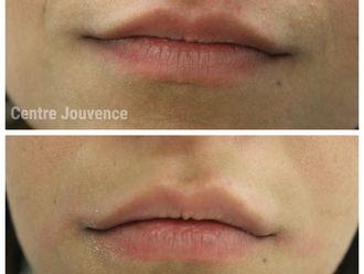 Augmentation des lèvres-629697