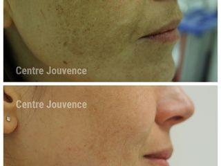 Avant après peeling depigmentant