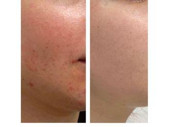 Traitement anti-acné-795528