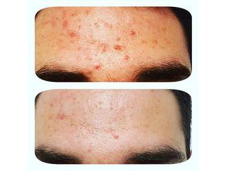 Traitement anti-acné-795538