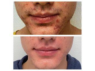 Traitement anti-acné-795539