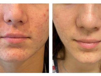 Traitement anti-acné-795907