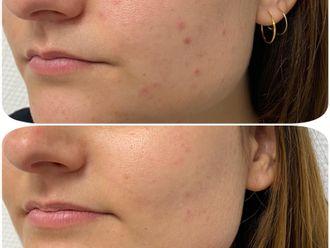 Traitement anti-acné-795908
