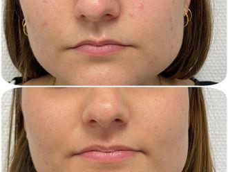 Traitement anti-acné - 795909