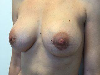 Augmentation mammaire.jpg