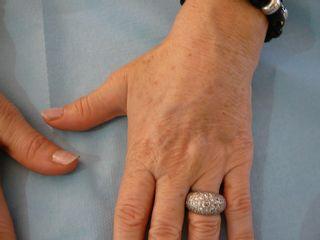 Avant traitement des mains