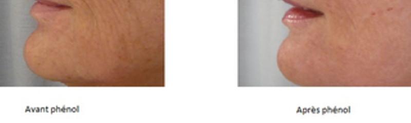 avant-après phenol peribuccal
