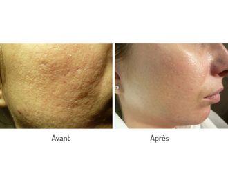 Traitement anti-acné - 576626