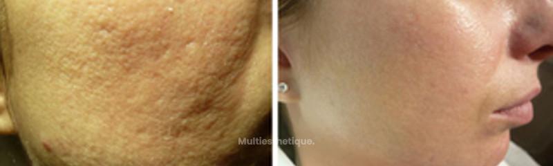 traitement-pores-catherine-de-goursac