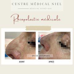 Rhinoplastie médicale - Dr Catherine de Goursac