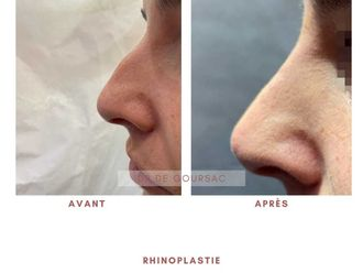 Rhinoplastie médicale - 798194
