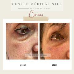 Cernes - Dr Catherine de Goursac