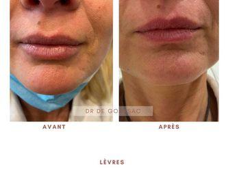 Augmentation des lèvres - 798209