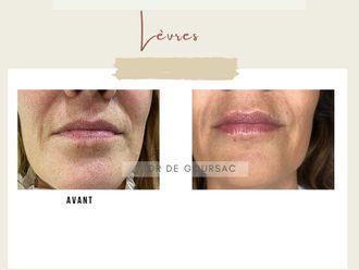 Augmentation des lèvres - 798217