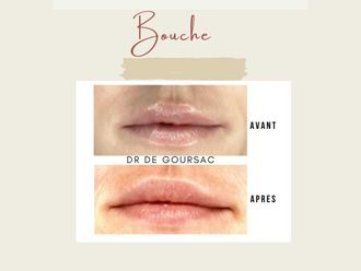 Augmentation des lèvres - 798218