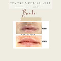 Augmentation des lèvres - Dr Catherine de Goursac