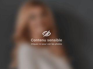 Mamelon ombiliqué - Dr Virginie Berard