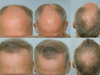 Avant après Greffe de cheveux