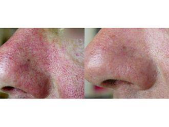 Dermatologie-576432