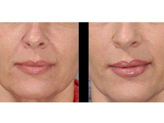 Augmentation des lèvres-576434