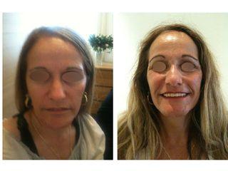 Avant après traitement anti-âge