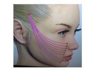 Restauration des volumes du visage