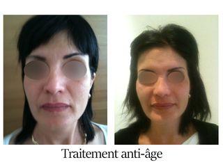 Traitement anti-âge - Dr Brigitte Dautel