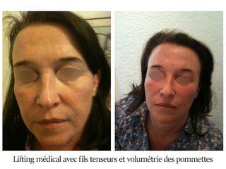 Lifting médical avec fils tenseurs et volumétrie des pommettes - Dr Brigitte Dautel