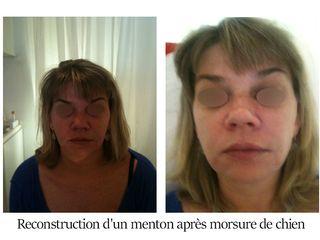 Reconstruction d'un menton après morsure de chien - Dr Brigitte Dautel
