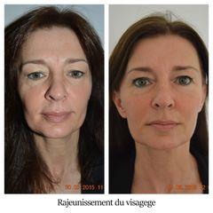 Rajeunissement du visagege - Dr Brigitte Dautel
