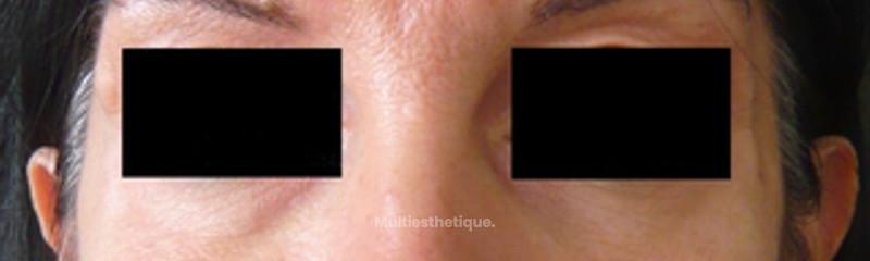Traitement des pommettes par acide hyaluronique et Botox
