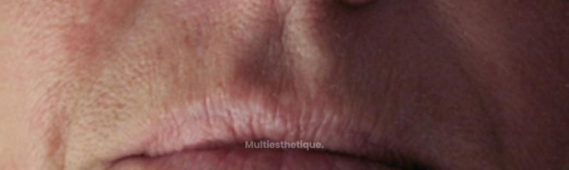 Traitement du plissé solaire et ourlet des lèvres.