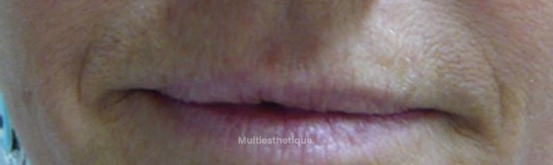 Traitement du plissé solaire et des lèvres