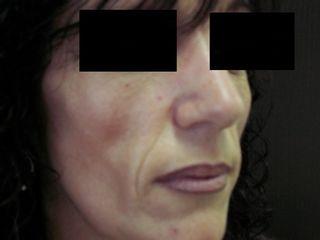 Remodelage du visage
