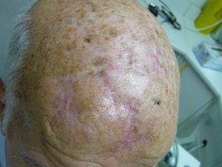 Résultat à 6 mois apres recontruction d'une lésion de la voute cranienne