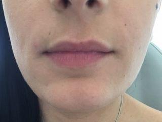 lèvre fine avant